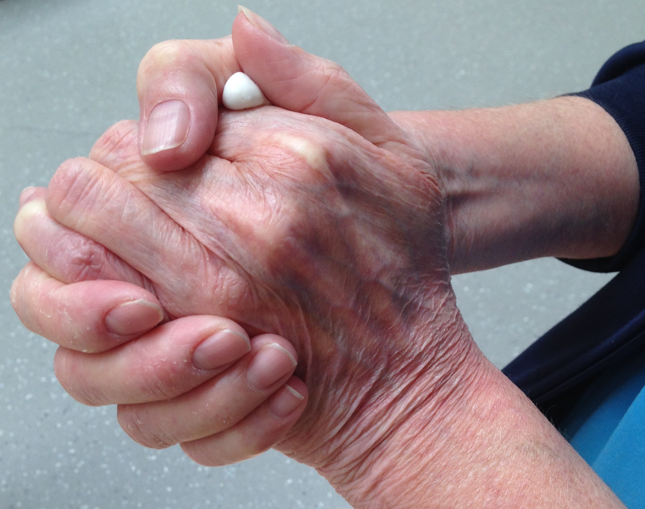a woman's hands are clasped together, some white substance can be seen slightly oozing out. Part of her nursing uniform can be seen.